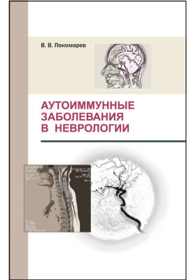 Аутоиммунные заболевания в неврологии: монография