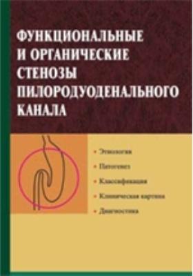 Функциональные и органические стенозы пилородуоденального канала