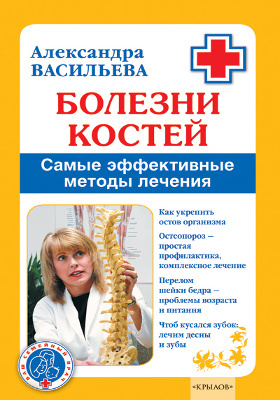 Болезни костей : самые эффективные методы лечения: научно-популярное издание