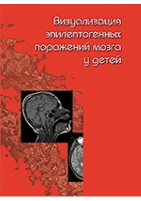 Визуализация эпилептогенных поражений мозга у детей