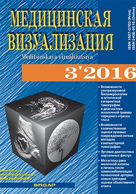 Медицинская визуализация. 2016. № 3